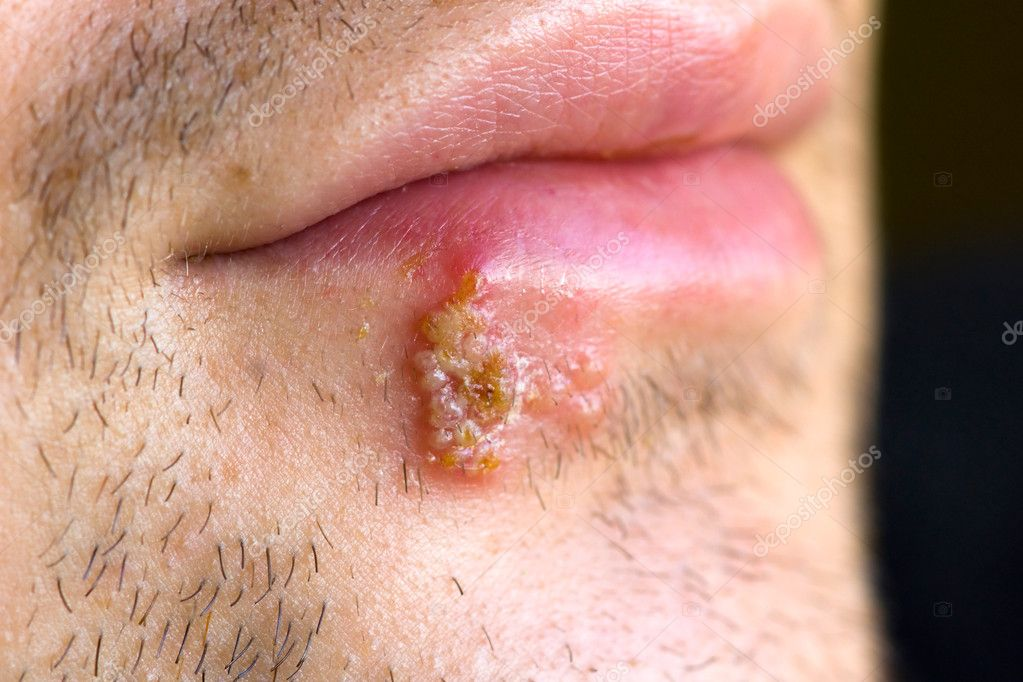 Is a cold sore herpes? ? 2