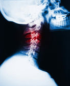 Neck x-ray and pain — Stock Photo