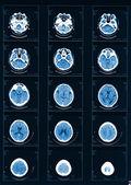 Radiografia computadorizada — Foto Stock