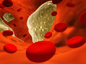 Atherosclerosis - clogged artery and erythrocytes — Stock Photo