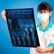 Doctor with xray — Stock Photo #4924861