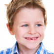 Cute boy showing missing tooth — Stock Photo