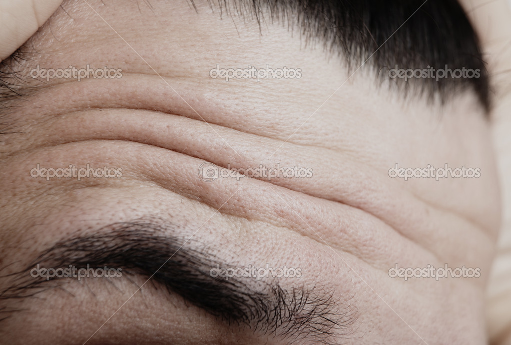 Wrinkles - forehead showing tension and fear — Stock Photo #4109053