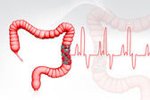 Colon cancer — Stock Photo