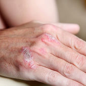 Psoriasis on the hand bones - close-up — Stock Photo