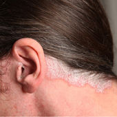 Psoriasis in the ear and neck — 图库照片
