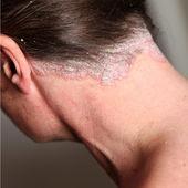 Severe psoriasis - neck — Stock Photo