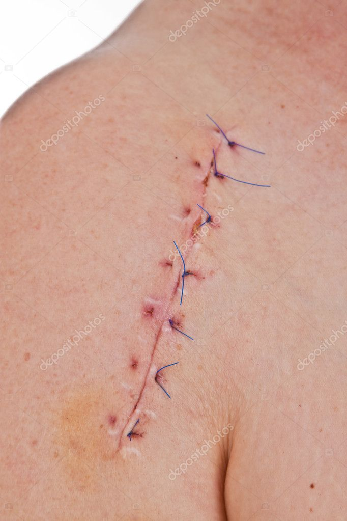 Close-up picture of a scar on a female shoulder with stitch — Stock Photo #4244706
