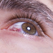 Green men eye with red blood vessels — Stock Photo