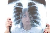 医生看着 x 射线 — 图库照片