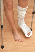 Broken leg — Stock Photo