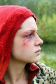 Victim of violence — Stock Photo