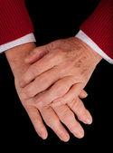 Mani artritiche — Foto Stock