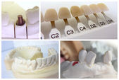 Dental technician objects — Stock Photo