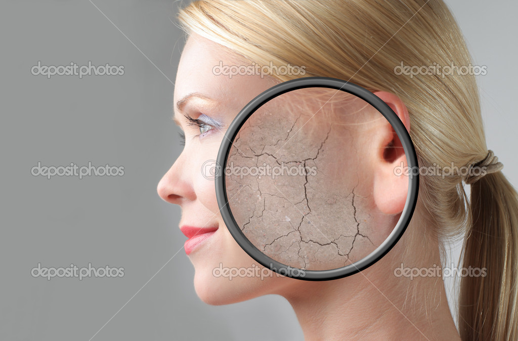 Beautiful woman with closeup of her damaged skin — Stock Photo #4012842