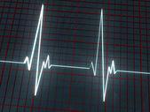 Light cardiogram — Stock Photo
