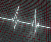 Light cardiogram on red grid — Stock Photo