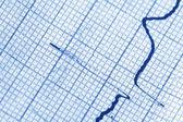 Cardiogram — Stock Photo