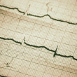 Cardiogram - Foto de Stock  