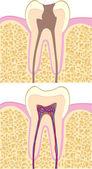 Human tooth anatomy — Stock Vector