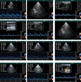 Echo cardiogram — Stock Photo