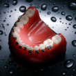 Dentures with braces — Stock Photo