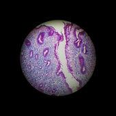 Chronical gastritis — Stock Photo