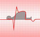 Infarto do miocárdio — Vetorial Stock