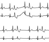 Heart diseases graphs — Stock Vector