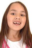 Dívka ztrácí své zuby. — Stock fotografie