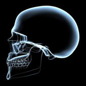 Human Skull - X-Ray Side View — Stock Photo