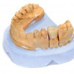 Dental mould — Stock Photo