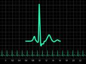 Electrocardiogram (EKG). EPS 8 — Stock Vector