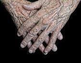 Hands of a senior man — Zdjęcie stockowe