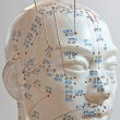 Acupuncture - Stock Photo