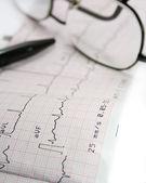 Electrocardiograma — Foto de Stock
