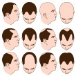 Receding Hairlines — Stock Vector