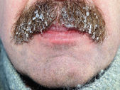 Moustaches with ice — Stock Photo