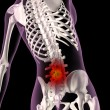 Back ache in a female skeleton - Stock Photo