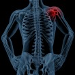 Shoulder pain — Stock Photo