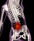 Back ache in a female skeleton — Foto Stock