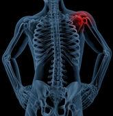 Shoulder pain — Stock Photo