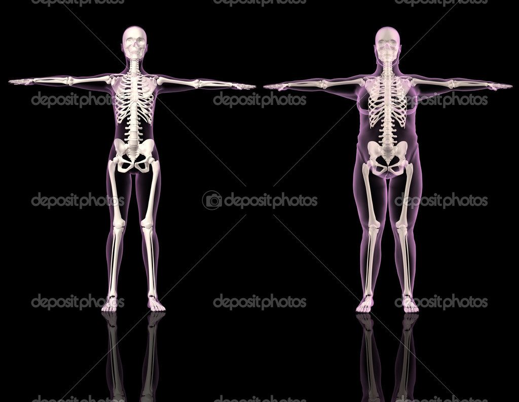 3D renders of two female skeletons one slim and one overweight — Stock Photo #5042694