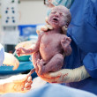 Stock Photo: Baby being born via Caesarean Section