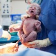 Baby being born via Caesarean Section - Stock Photo