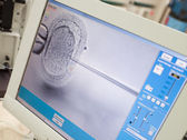 Monitor showing intra cytoplasmic sperm injection — Stock Photo