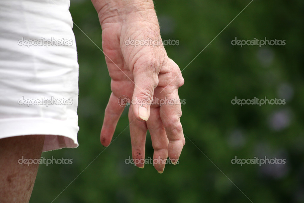 Hand of a senior woman with rheumatoid arthritis showing the nodules on her hand and fingers.  — Stock Photo #4577118