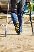 Color crutch and broken leg in striped sock — Stock Photo