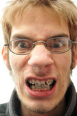 Mean man with braces — Stock Photo