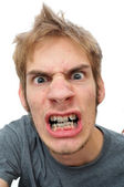Man showing his braces — Stock Photo